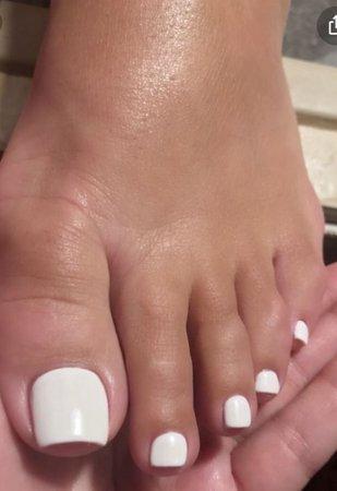 white toenails