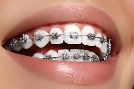 braces - Google Search