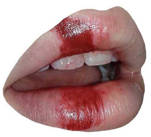 bloody lip