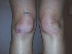 bruises aesthetic girl - Google Search