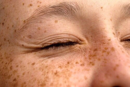freckles aesthetic - Google Search