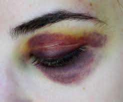 aesthetic bruise - Sök på Google