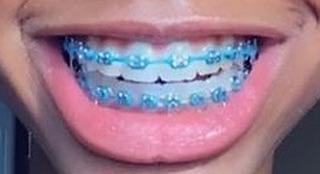 blue braces
