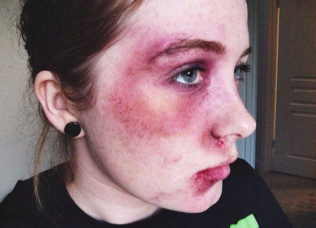 bruise makeup - Google Search
