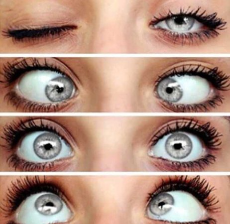 limbal ring gray eyes