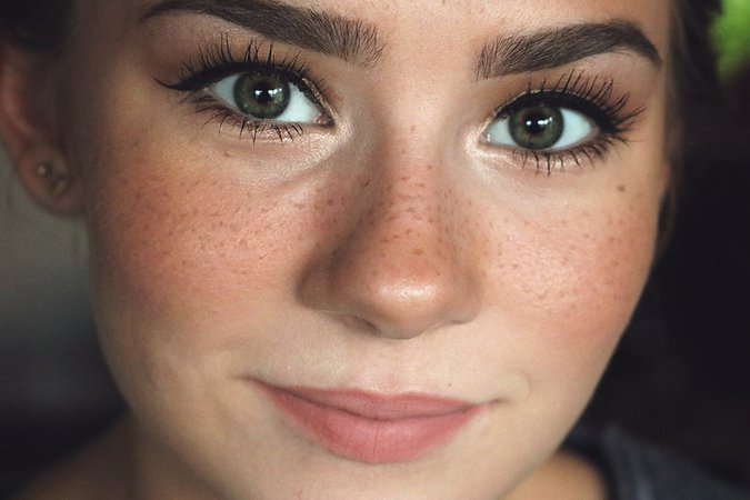 nose and cheek freckles - Google Search